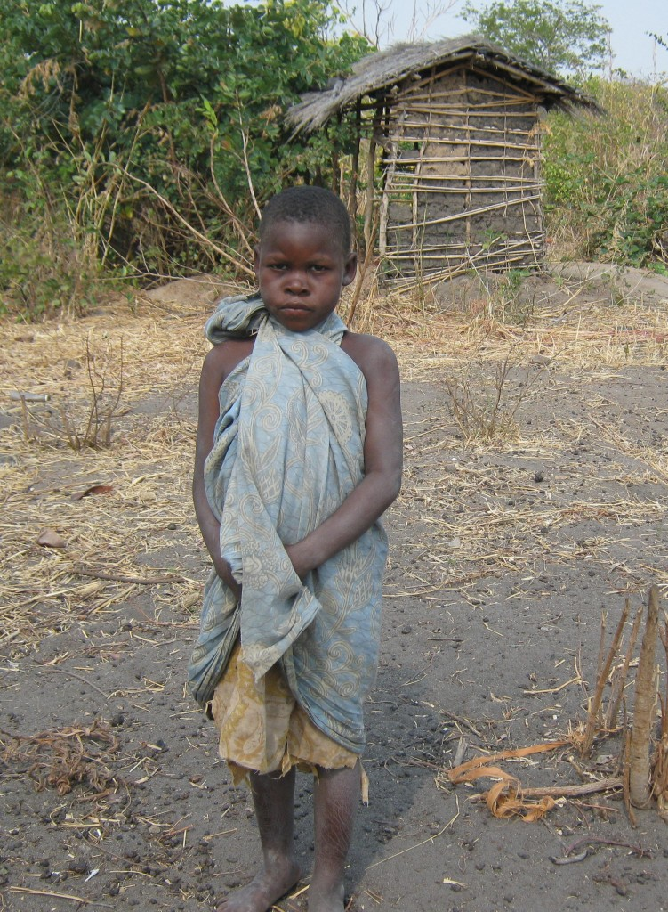Flora Msiska age 8 at Doloba School before CHW helped her.
